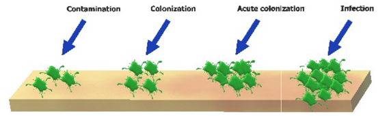 Illustration of the continuum from contamination to wound infection