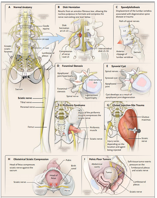 Origin and Course of the Sciatic Nerve and the Main Sites of Damage