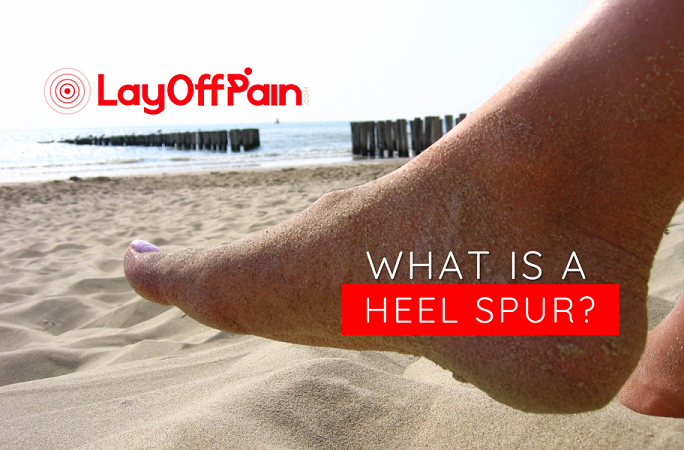 What is a heel spur